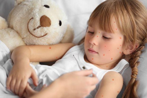 Roseola infantum, a sasea boala a copilariei: simptome, complicatii, tratament