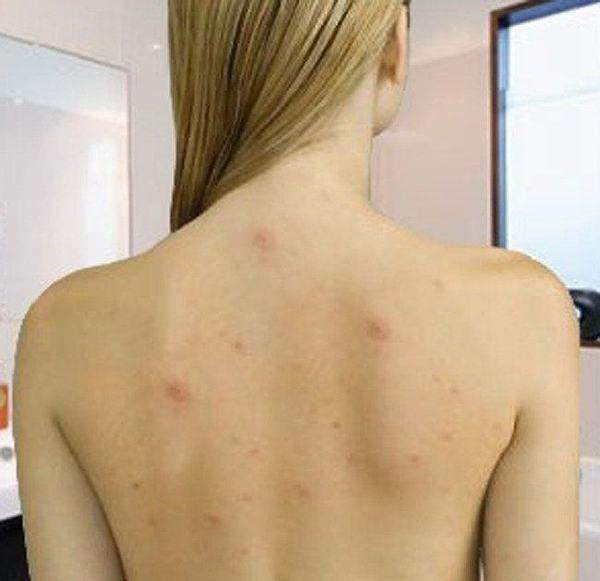 Acneea pe spate si piept – de ce apare si cum poate fi prevenita