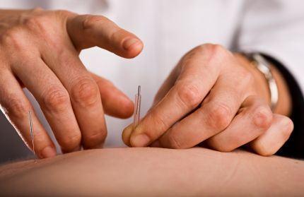 Acupunctura in sarcina. Beneficii