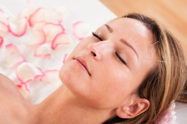 Acupunctura si beneficiile sale