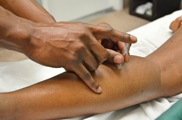 Acupunctura si problemele curente in sarcina