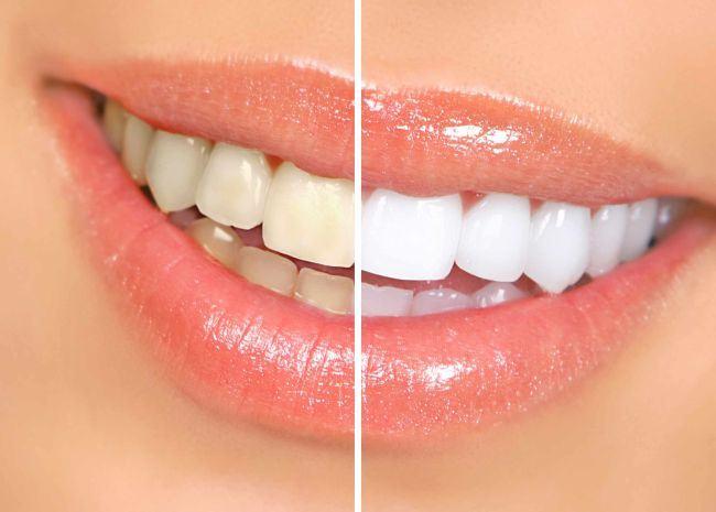 5 lucruri pe care ar trebui sa le stii inainte de albirea dentara