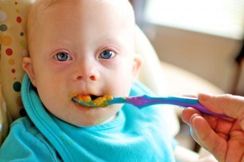 Alimentatia copilului cu Sindrom Down