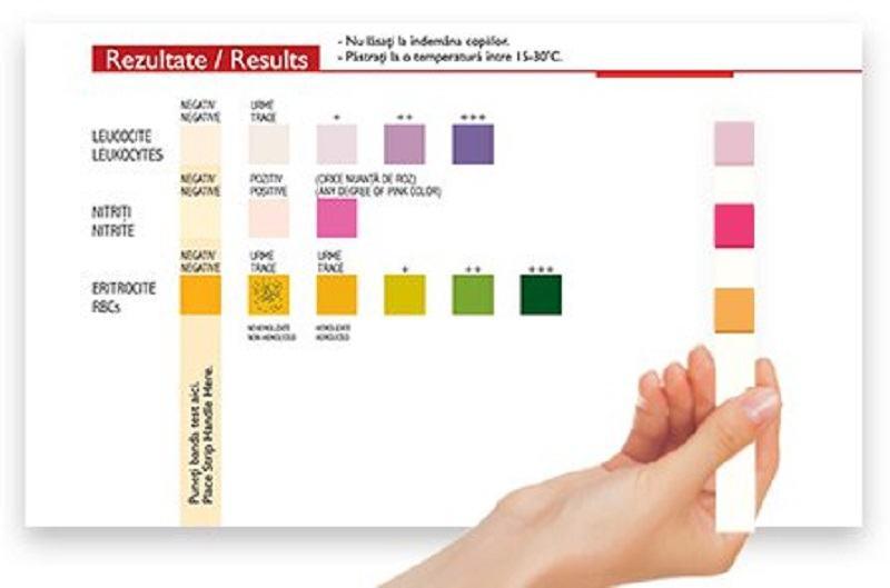 Ce iti poate spune un test de urina despre sanatatea copilului tau. Mesaje importante de la pediatru