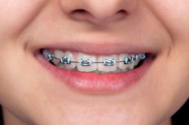 Aparatul dentar la copil – cand este necesar si cum il alegem?