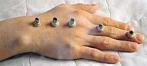 Sarcina favorizata de acupunctura