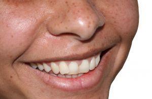 Dentistii depisteaza cancerul de san