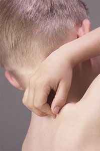 eczema sub san tratament psoriazis formula