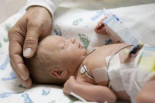 Nevoia de atingere la copiii nascuti prematur
