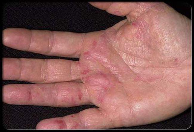 Simptomele cancerului apar prima data pe maini - NU le ignora