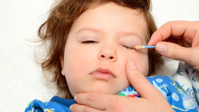 Conjunctivita la bebelusi si copii