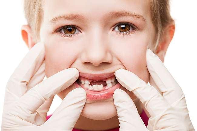 control_medic_dentist_cadere_dintisori_de_lapte_copii