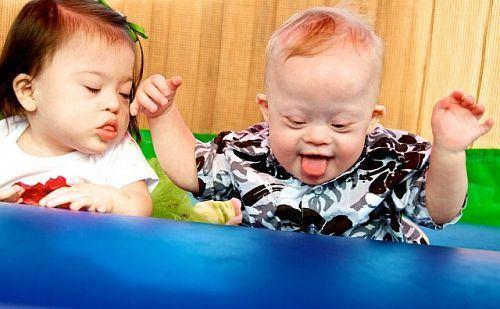 Sindromul Down la copii. Tot ce trebuie sa stii