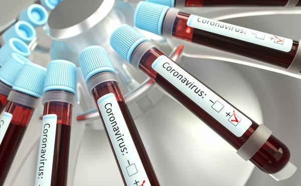 Record dramatic: 1.112 cazuri noi de persoane infectate cu SARS-CoV -2