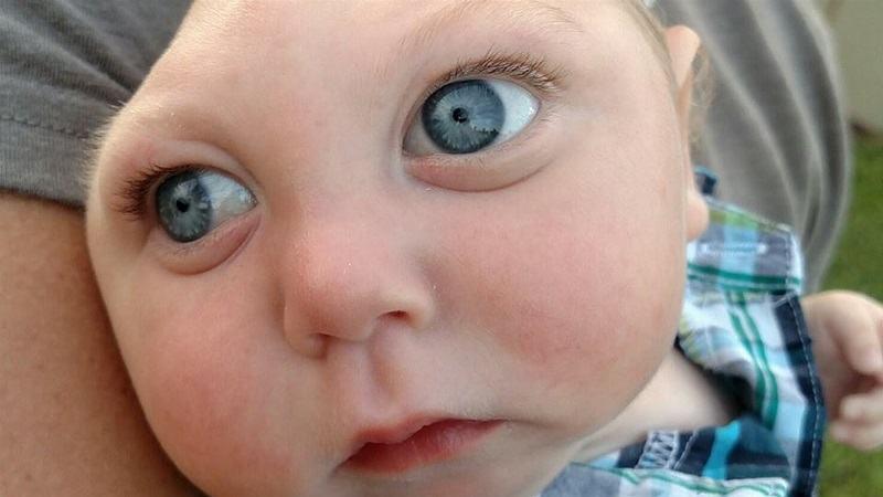 Baietelul care s-a nascut fara o parte din creier s-a stins din viata la 5 ani