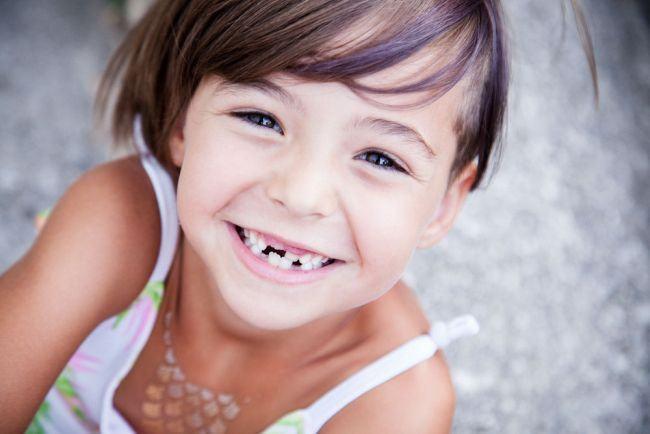 Cum prevenim fracturarea dintilor