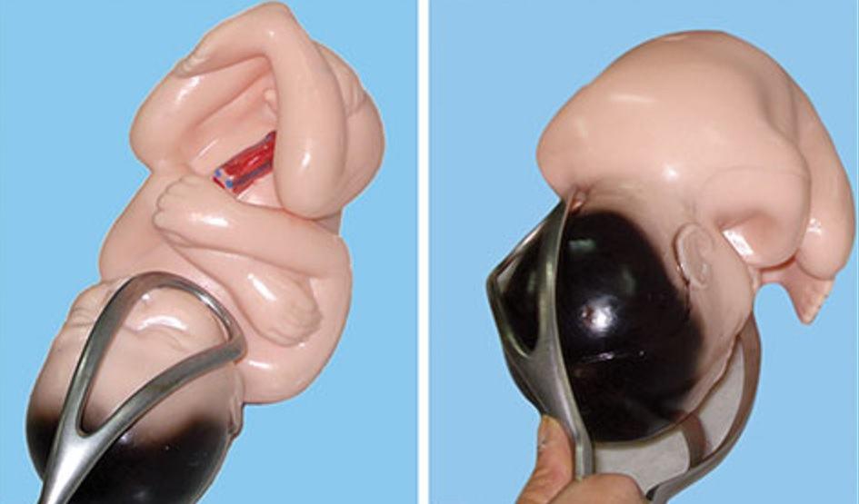 Cum a schimbat forcepsul nasterea naturala