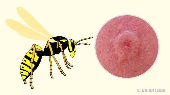 7 tipuri de intepaturi de insecte si cum sa le deosebesti