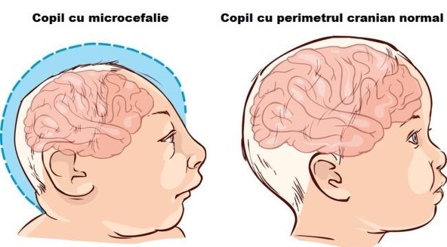 microcefalie-copii