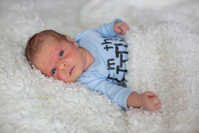 Probleme ale pielii intalnite frecvent la nou-nascuti