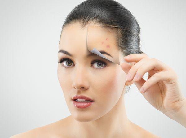 6 probleme ale pielii dupa nastere