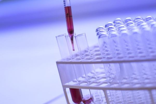 Screeningul pentru anticorpii anti Rh