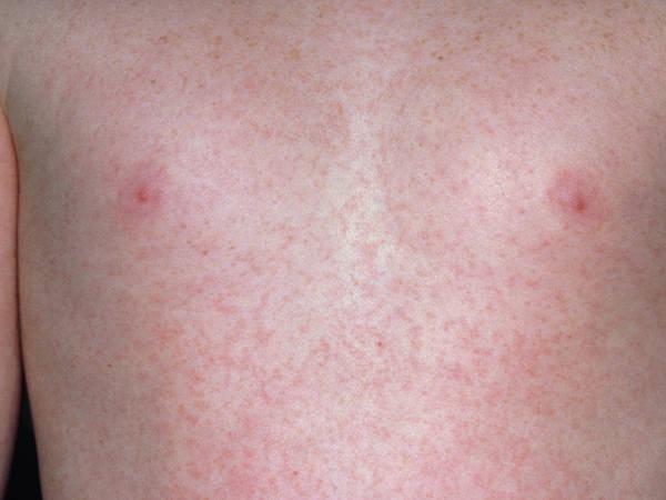 erupții mici pe piept și abdomen