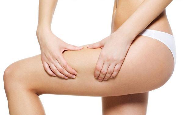 Celulita, o provocare in perioada sarcinii
