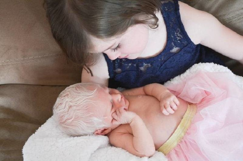"Reactia tandra a unei fetite cand si-a vazut surioara care s-a nascut cu albinism: ""Copiii nu vad diferente"""