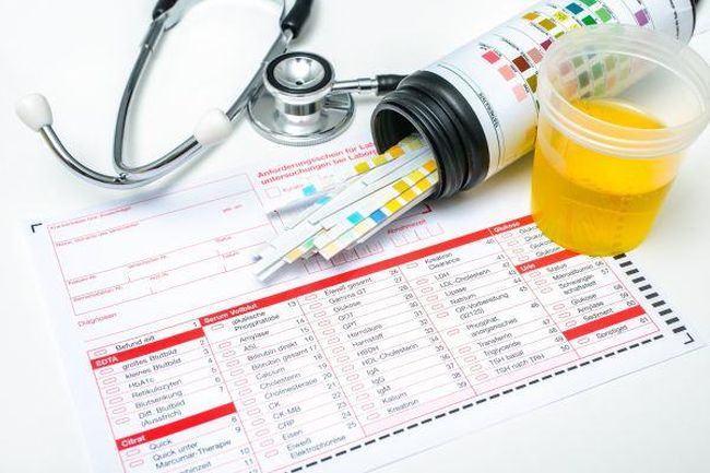 Analiza de urina in timpul sarcinii: cum se interpreteaza rezultatele