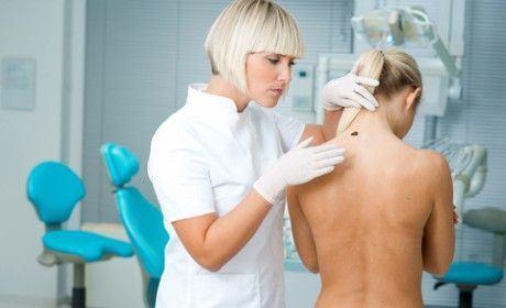 Testari gratuite pentru depistarea melanomului