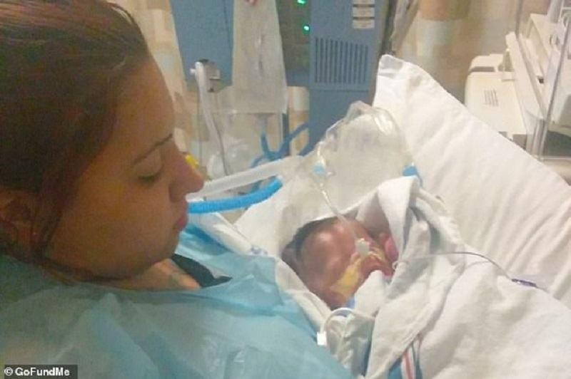 Isi poate imbratisa copilul de 10 luni, nascut fara piele. Medicii nu i-au dat nicio sansa la viata