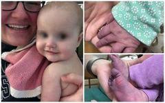 Mainile si picioarele unei fetite de 5 luni s-au albastrit la cateva zile dupa infectia cu coronavirus