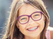 VOUCHERE pentru aparate dentare, pentru copiii din Bucuresti