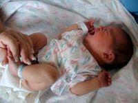 Traumatismele obstetricale la nou-nascut