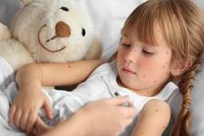 Medic pediatru: Cele mai frecvente boli contagioase ce se iau de la gradinita si scoala!
