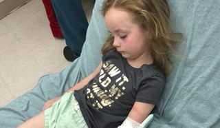 O fetita de 5 ani a paralizat temporar in urma unei muscaturi de capusa