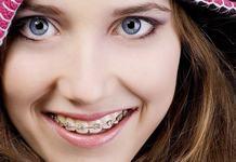 Adolescentul – cand si de care tip de aparat dentar are nevoie?