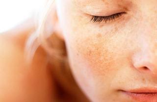 Melasma cea mai raspandita afectiune post-sezon cald