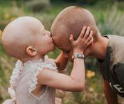 Dragoste de frate: S-a ras in cap pentru ca sora lui sa nu se simta singura in lupta cu cancerul