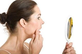7 mituri despre acnee