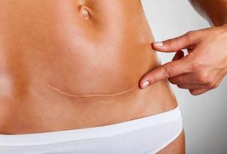 Remedii naturale pentru vindecarea cicatricei lasata de cezariana