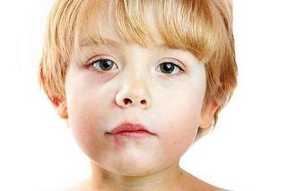 Herpesul (herpes simplex) la copii
