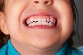 Probleme frecvente ale dintilor la copii