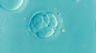 Prea putin lichid amniotic