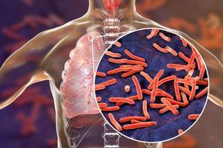 Tuberculoza si sarcina