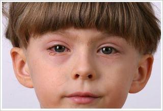 Tratamentul si ingrijirea copilului cu conjunctivita