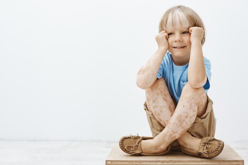 Petele pigmentare la copii. Din ce cauze apar si cand este cazul sa mergem la dermatolog