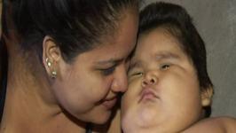 Cel mai gras bebelus din lume. Are greutatea unui copil de 9 ani!