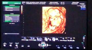 Prima ecografie cu bebelusul Andreei Balan. Cum si-a tinut vedeta sarcina ascunsa